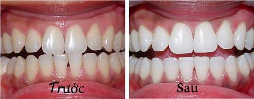 Mấy tháng lấy cao răng một lần