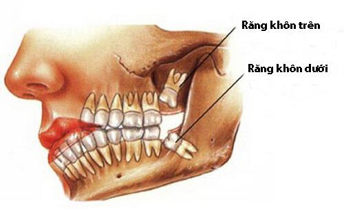 Răng khôn mọc trong bao lâu