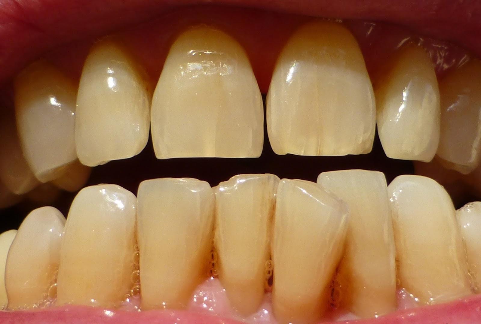 Răng bị ố vàng