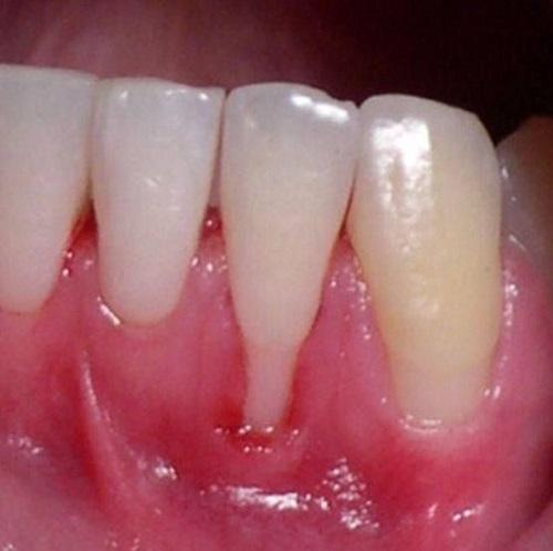 cách chữa bệnh viêm nướu răng
