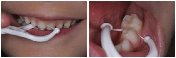 dùng chỉ nha khoa có làm thưa răng