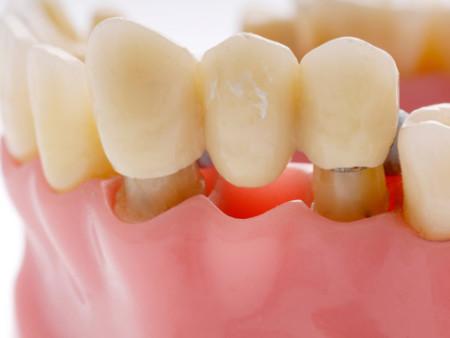 làm cầu răng có tốt không