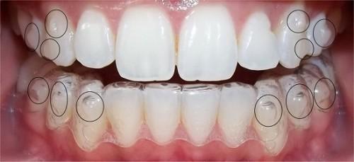niềng răng tháo lắp co hiệu quả không