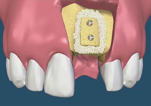 vì sao nên ghép xương răng