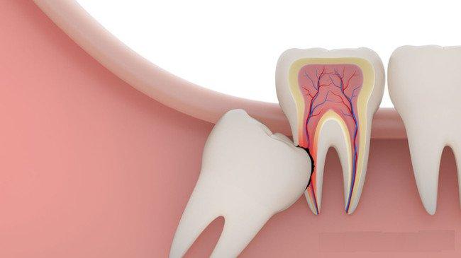 Mọc răng khôn uống thuốc gì?