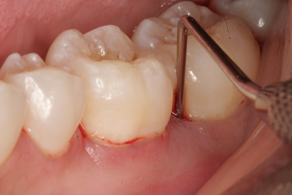 trị bệnh viêm nướu răng