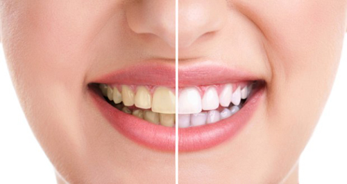 Có nên tẩy trắng răng không?