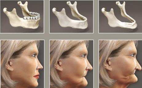Điều trị tiêu xương răng
