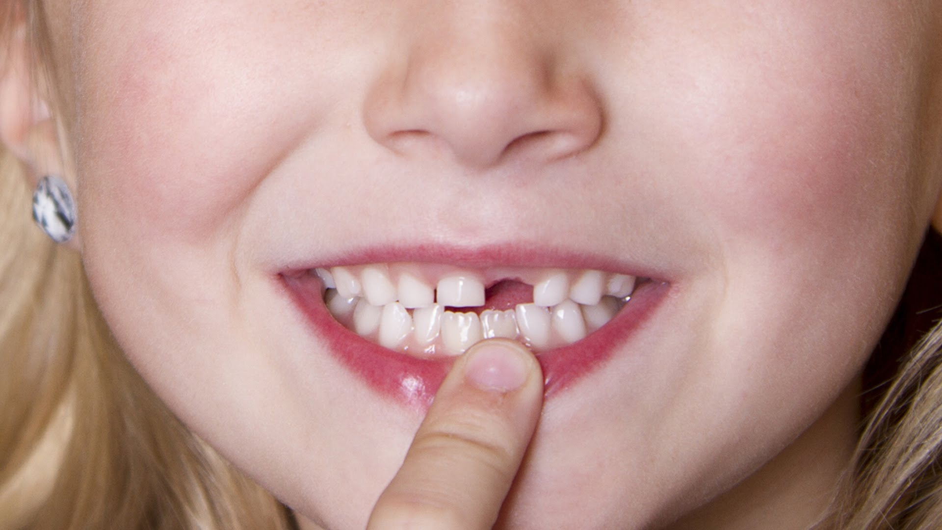 Nhổ răng trẻ em