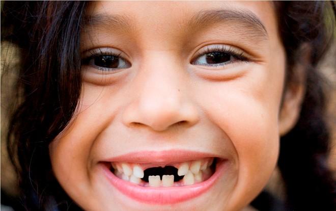 Răng hàm sữa có thay không