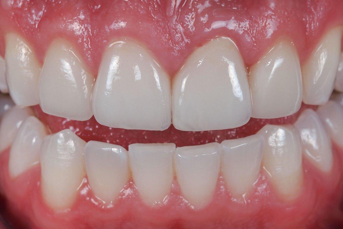 Trồng răng sứ vĩnh viễn có đau không?