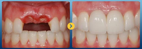 cấy răng implant