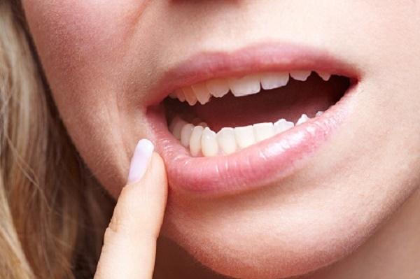 răng lung lay làm sao