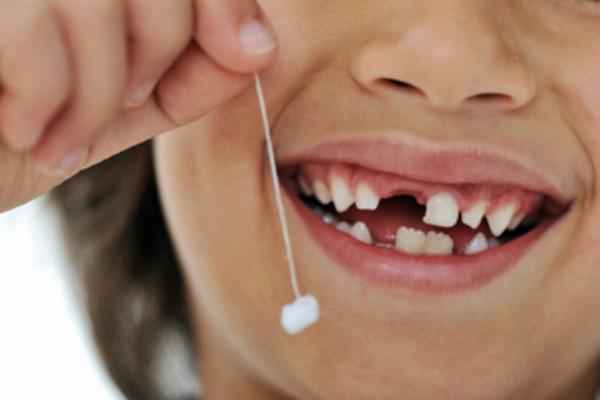 răng sữa lung lai