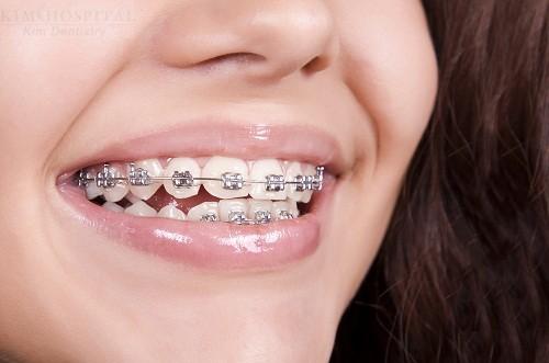 răng thưa có xâu skhoong