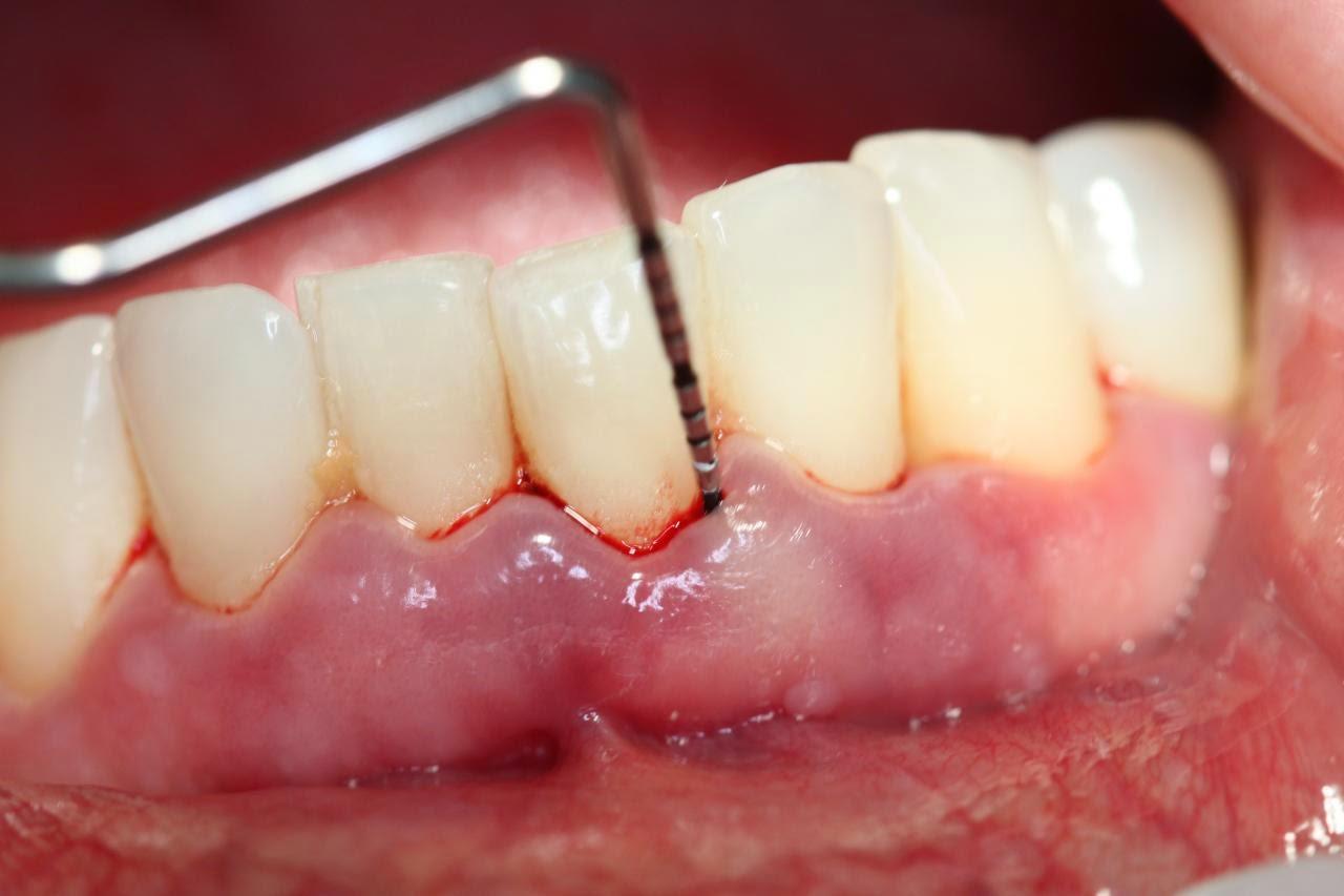 viêm nướu răng ăn gì cho khỏi