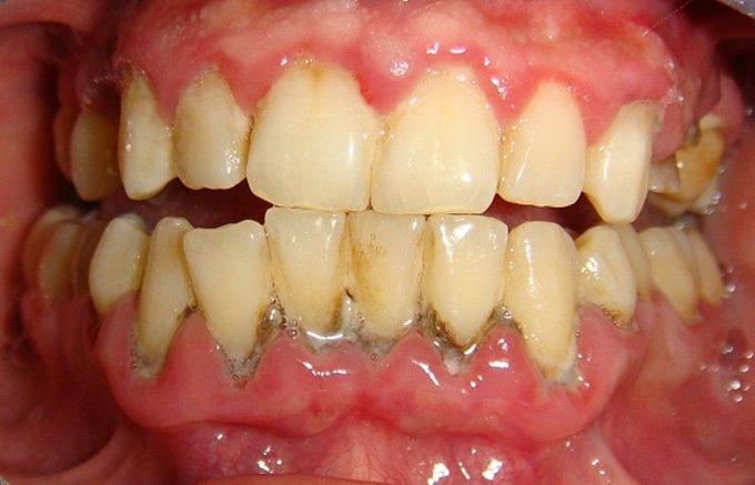 Khái niệm về cao răng