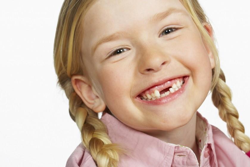 Biến chứng khi để răng bị chậm