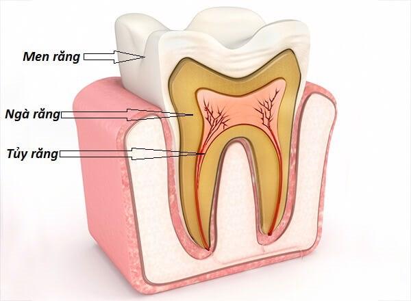 Gãy men răng và ngà răng, tác động tới tủy