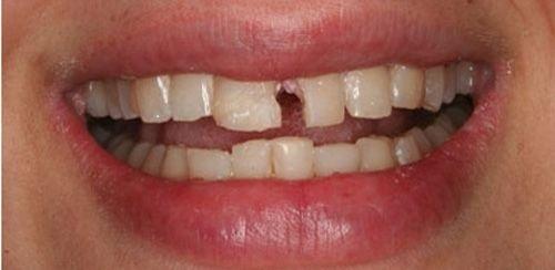 Gãy men răng