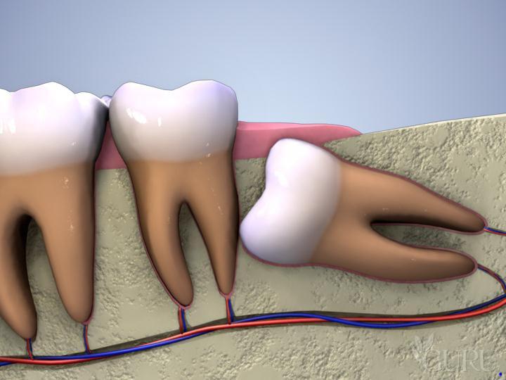 Những lúc cần phải thực hiện nhổ răng
