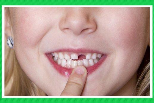 Qúa trình thay dần răng hỗn hợp
