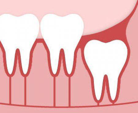 Cách chăm sóc răng khôn
