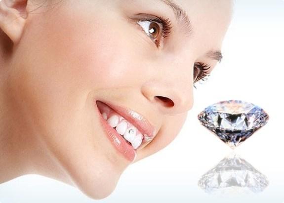 chăm sóc răng đính đá
