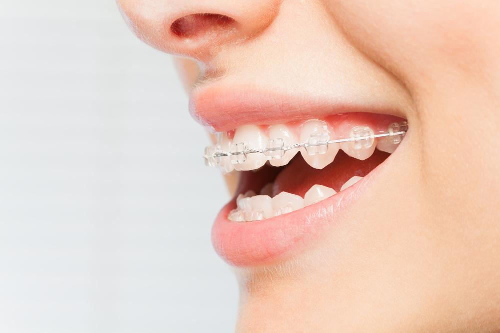 video chăm sóc răng niềng
