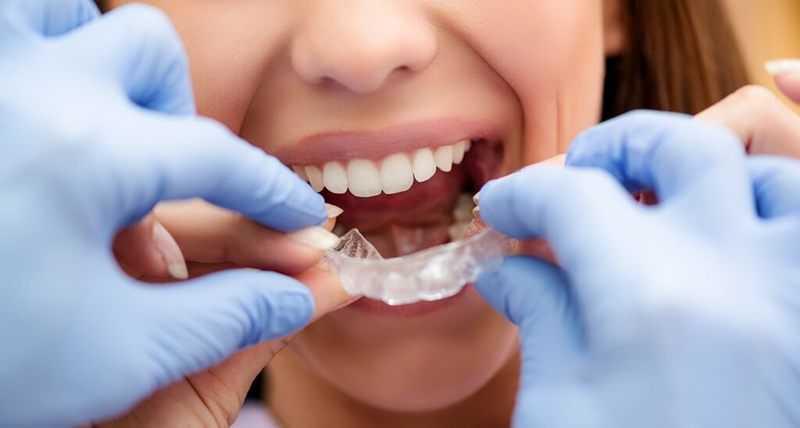 Niềng răng không mắc cài trong bao lâu?