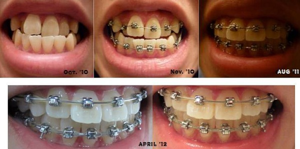 Niềng răng mắc cài có tốt không?