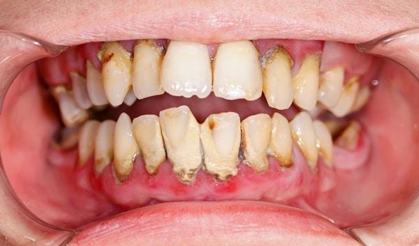 ý thức chăm sóc răng miệng