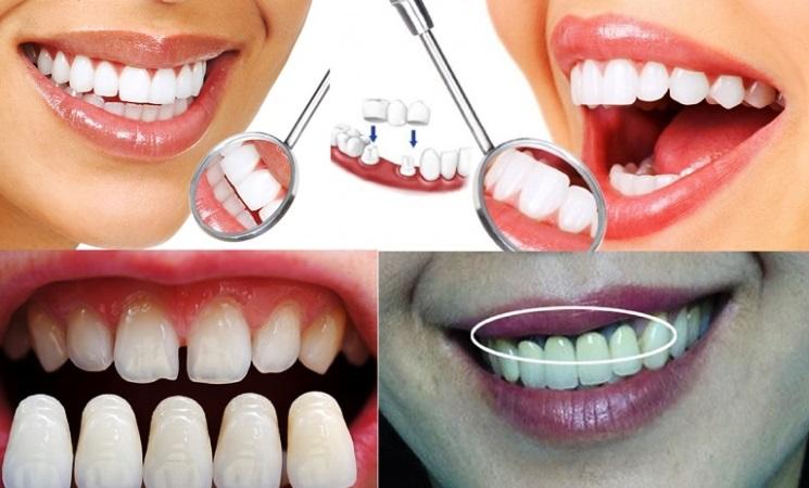 Bọc răng sứ có nguy hiểm không?