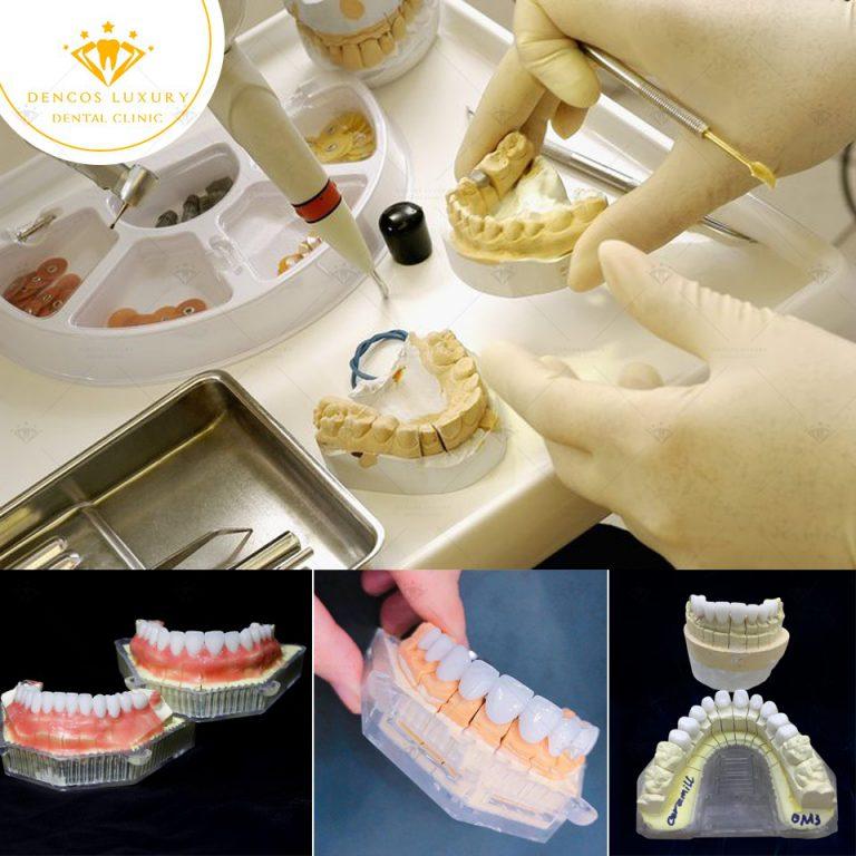 Địa chỉ bọc răng sứ đẹp tại Hà Nội