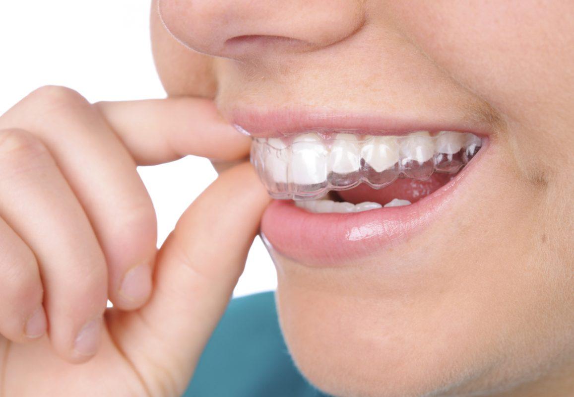 Niềng răng không mắc cài có tốt không?