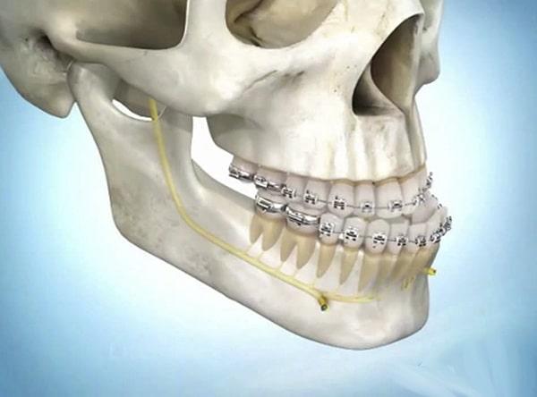 Niềng răng mắc cài có nguy hiểm không?