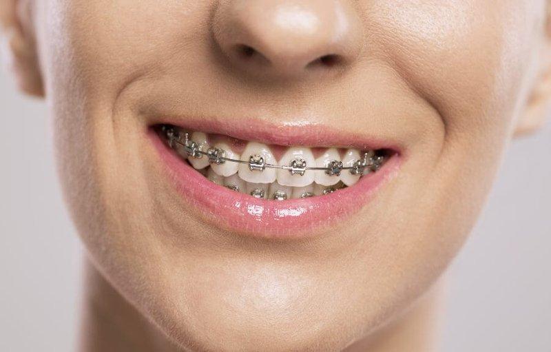 Niềng răng mắc cài giá bao nhiêu?